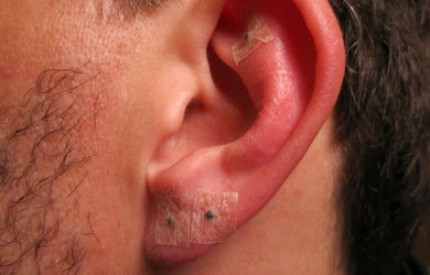 ear piercing infection