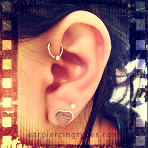 Captive bead ring forward helix