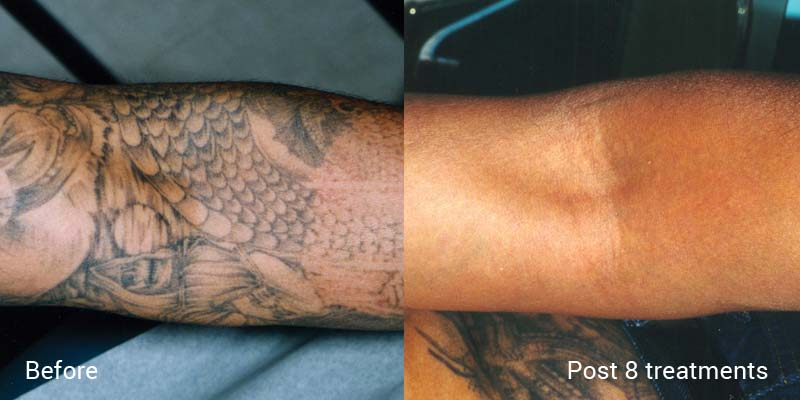 Few tips to get prepared before and after tattoo removal for Getting a tattoo removed